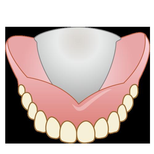床義歯(コバルト)